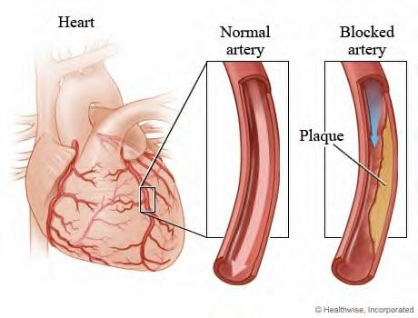 arteries1.jpg
