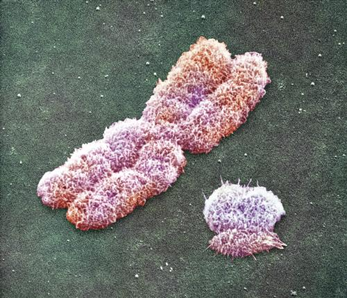 chromozom_x_y.jpg