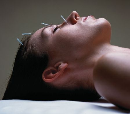 facial-acupuncture.jpg
